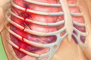 Симптомы и лечение трещины ребра