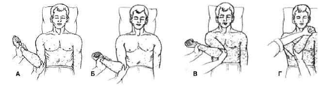 Как вправить вывихнутое плечо