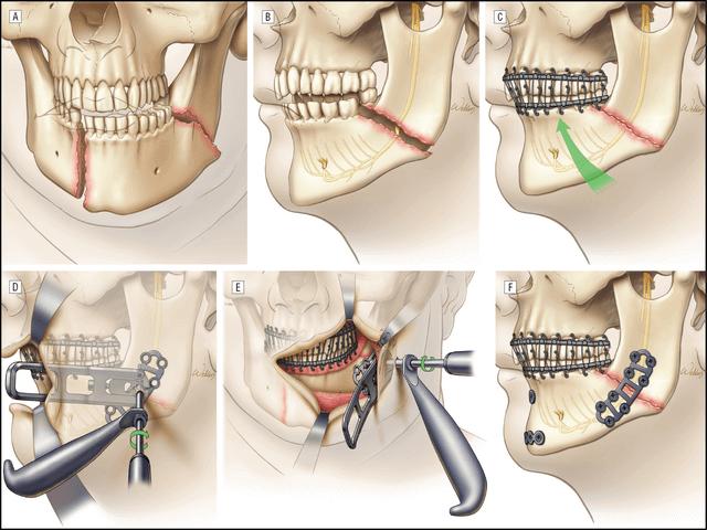 Лечение перелома челюсти в стационаре