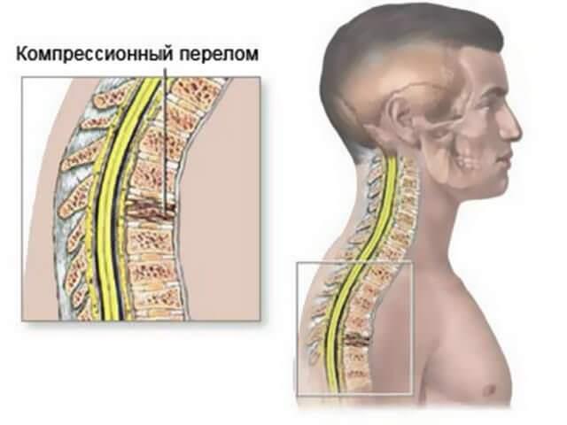 Компрессионная травма спины