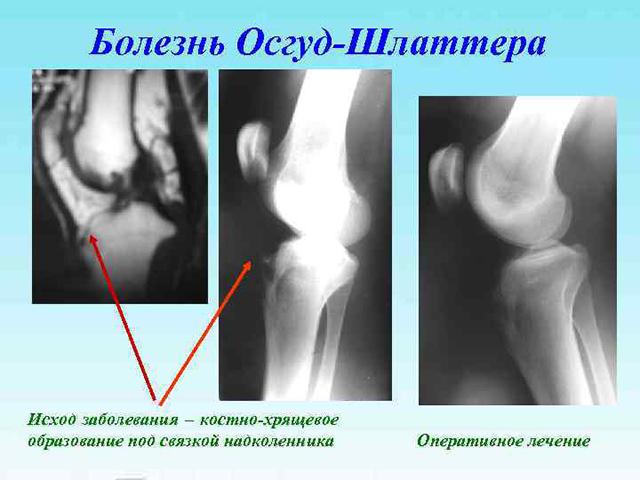 Снимки рентгеном