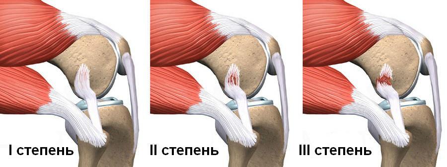 Симптомы разрыва колена