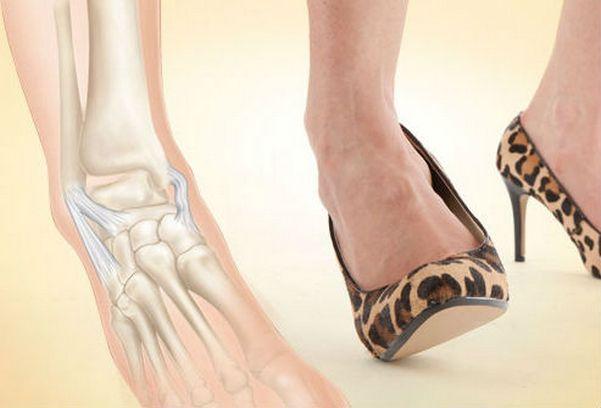 Что делать при вывихе ноги, первая помощь и лечение