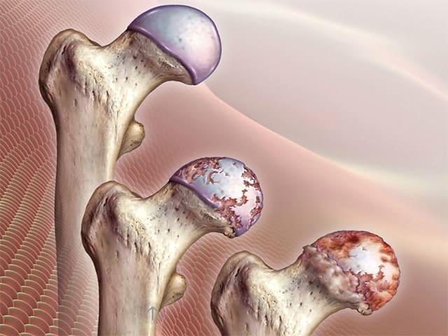 Методы эффективного лечения коксартроза тазобедренного сустава