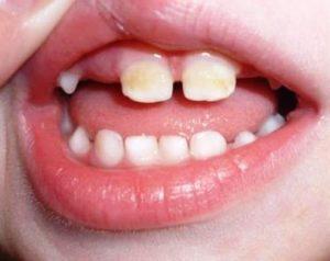Симптомы серого налета на зубах