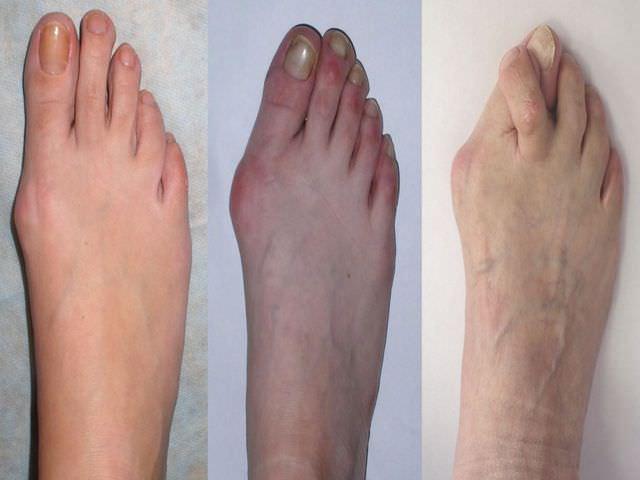 заболевание суставов стопы