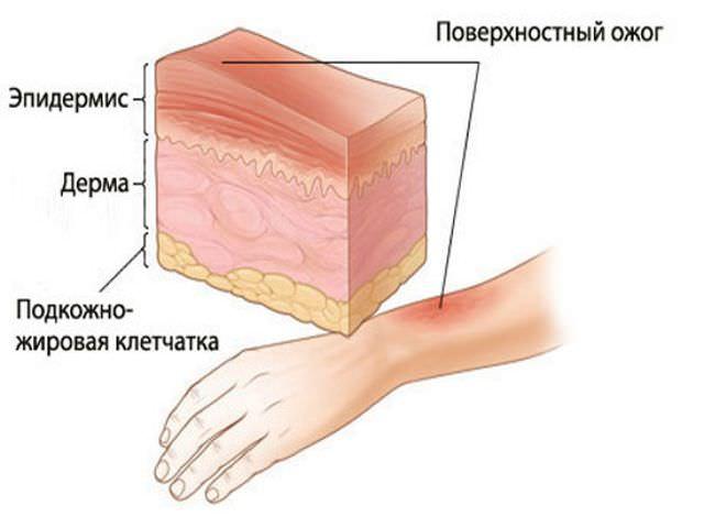 Повреждение руки