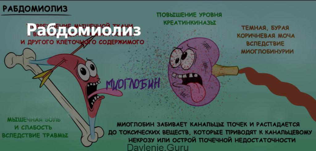 Рабдомилиоз