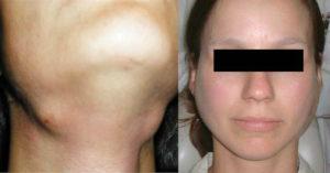 Симптомы и лечение воспаления подчелюстной слюнной железы