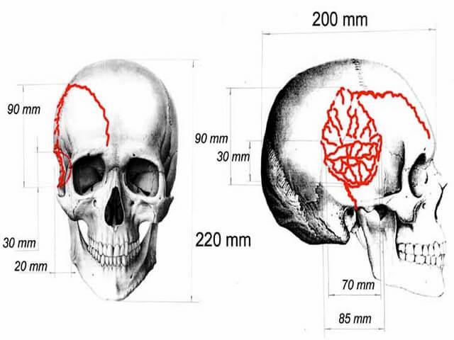 Повреждения на черепе