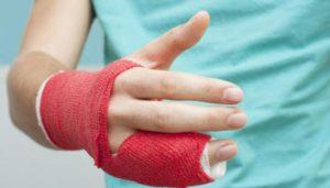 Лечение перелома мизинца на руке