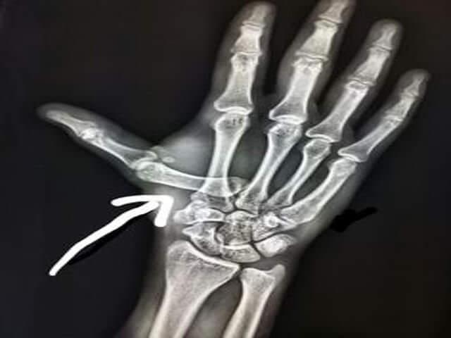 Снимок вывиха пальца