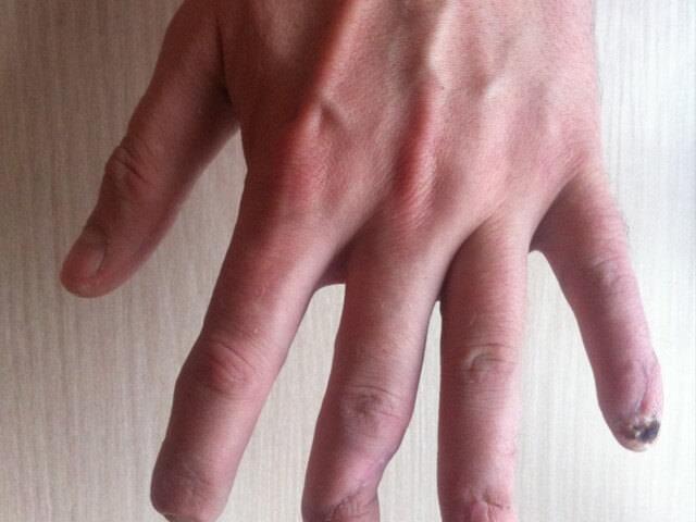 Сильное повреждение пальца