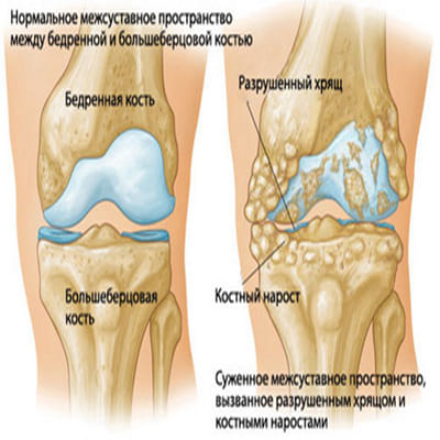 Что такое гонартроз коленного сустава 1 степени и как его лечить