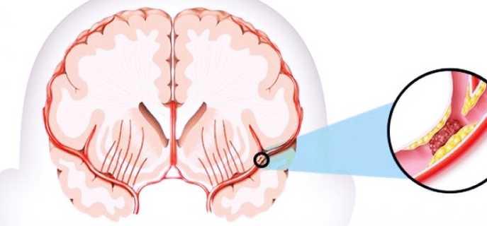 Виды, симптомы и диагностика нарушений мозгового кровообращения
