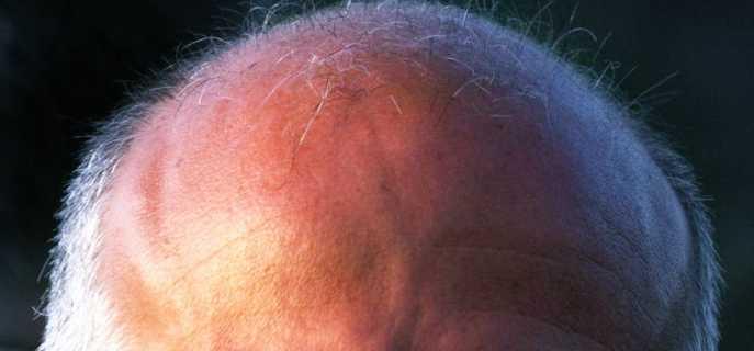 Причины, диагностика и лечение мурашек по голове