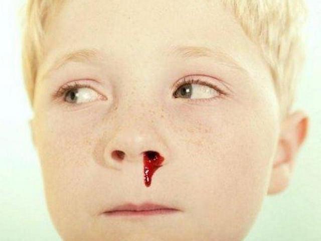 Кровь от травмирования