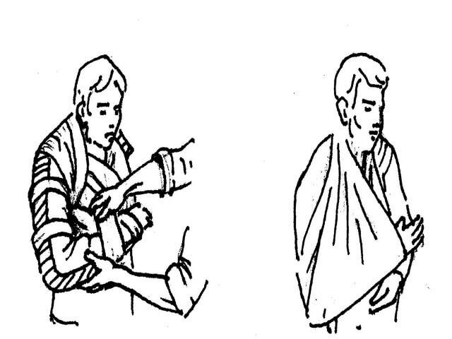 Обездвижевание плеча