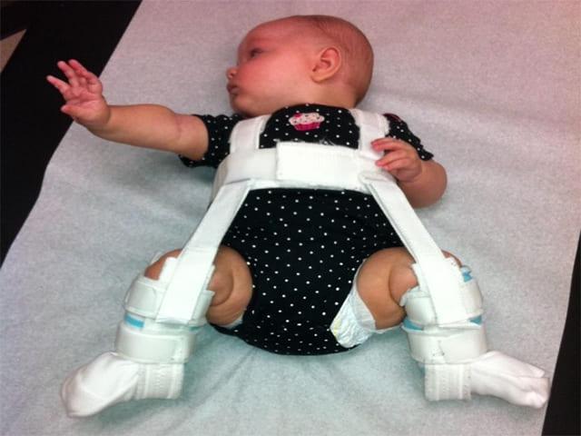 Что нужно знать о дисплазии тазобедренного сустава у ребёнка и её лечении