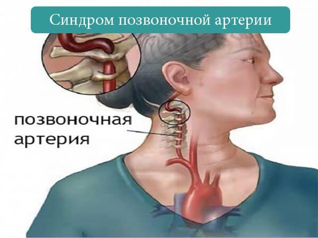 Что такое синдром позвоночной артерии и как он лечится