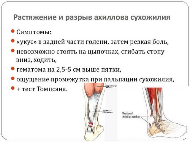 Симптоматика боли в ноге