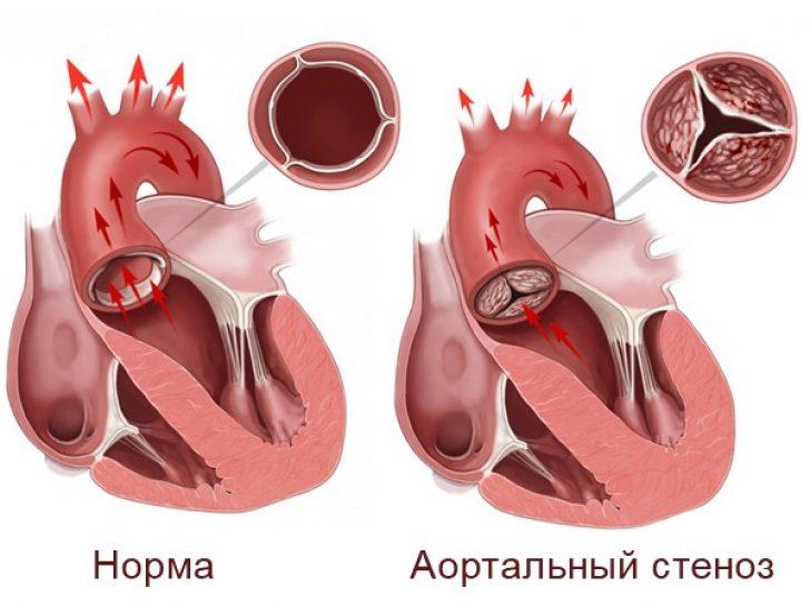Стеноз клапана аорты