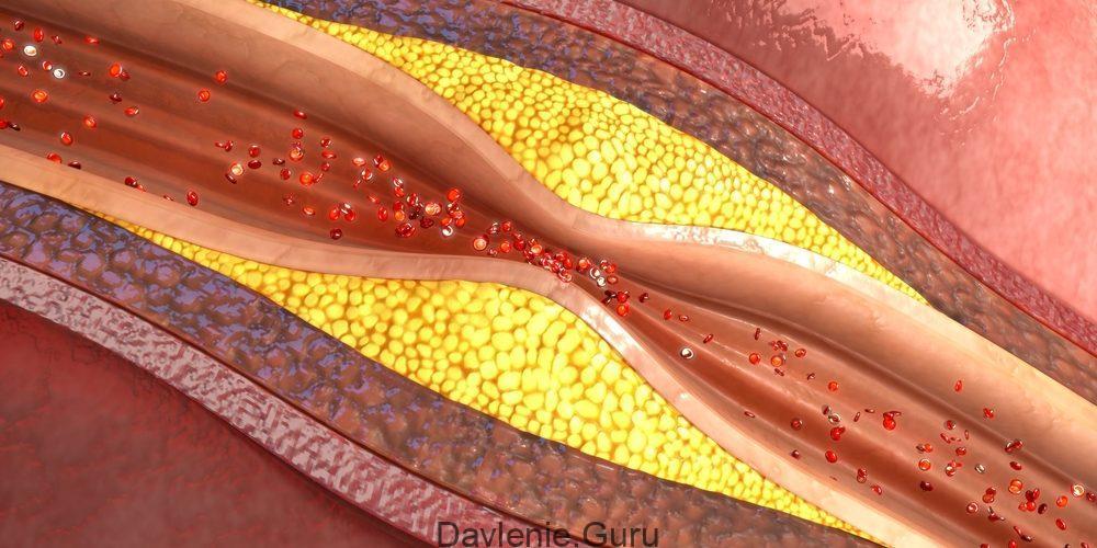 Фазы атеросклероза
