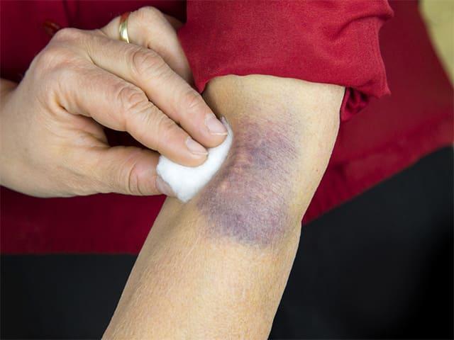 Причины и виды болей в локтевом суставе