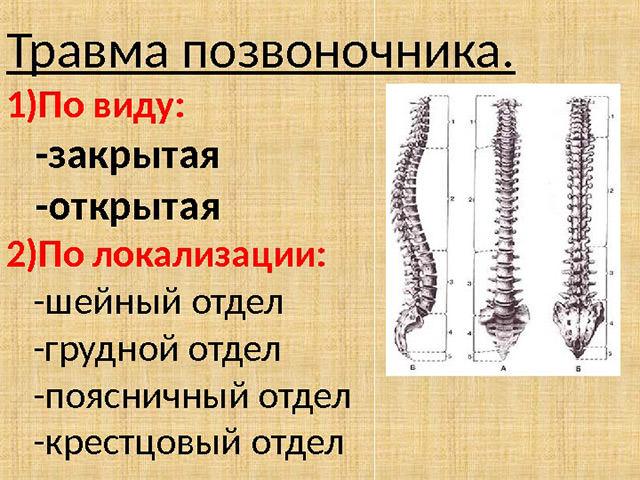 Травма позвоночника