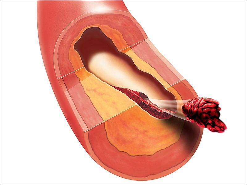 Атеросклеротические изменения