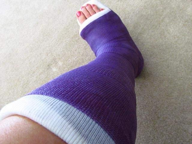 Гипс при переломе ножных костей