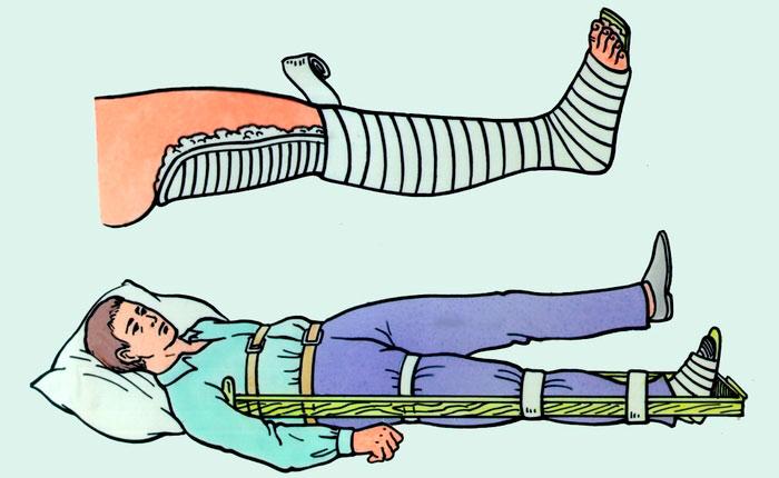 Вывих колена симптомы и лечение