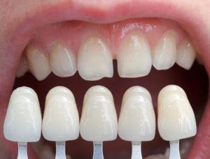 Какие основные плюсы и минусы виниров на зубы