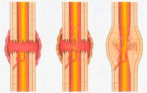 Что такое костная мозоль?