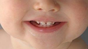 черные точки на зубах и способы избавления от них