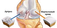 artroz-mal