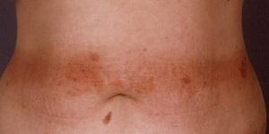 Аллергический дерматит на теле