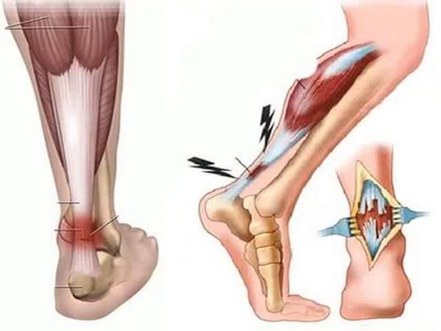 Повреждение сухожилия