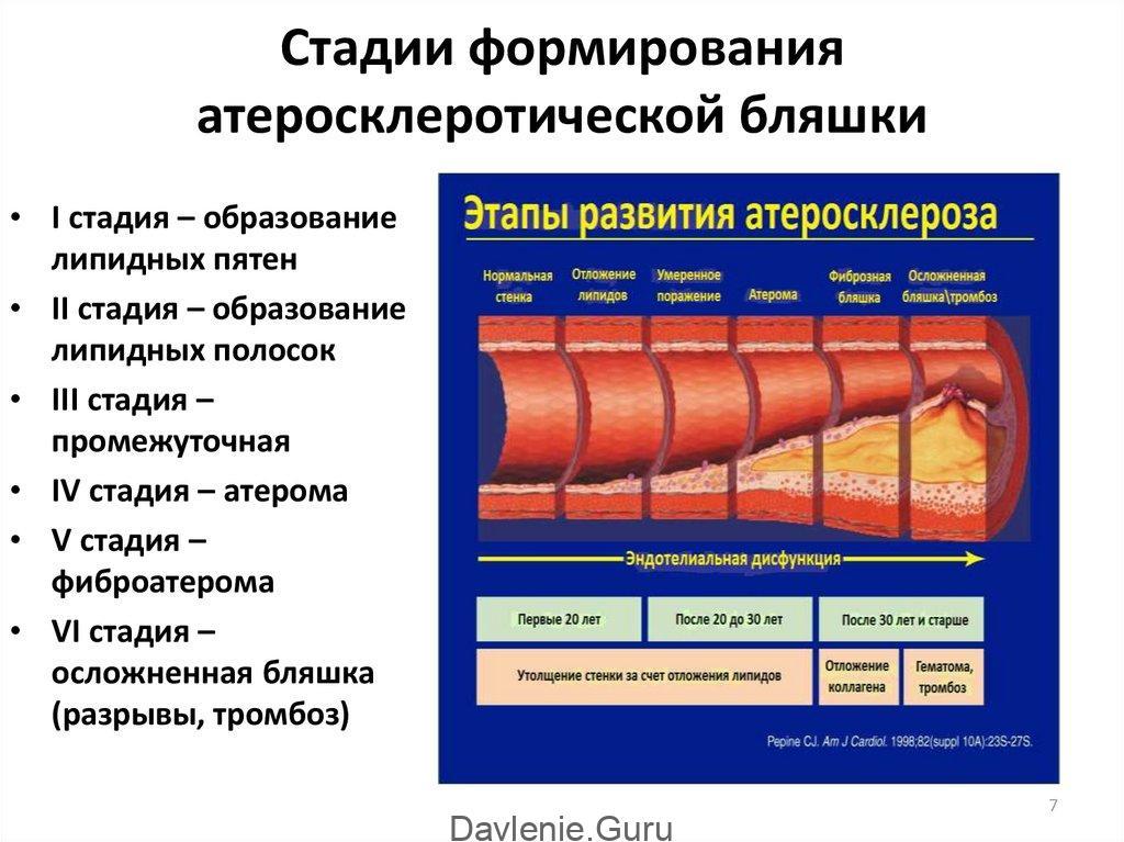 Атеросклероз стадии