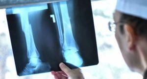 Патологические переломы костей
