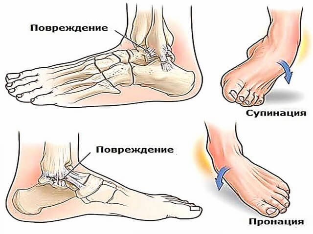 Повреждения ноги