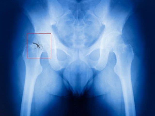 травма тазобедренного сустава