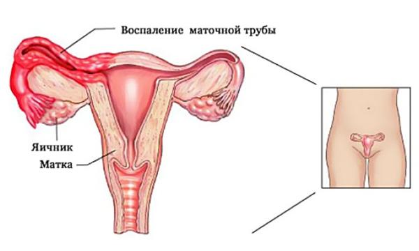 Как выглядит воспаление придактов