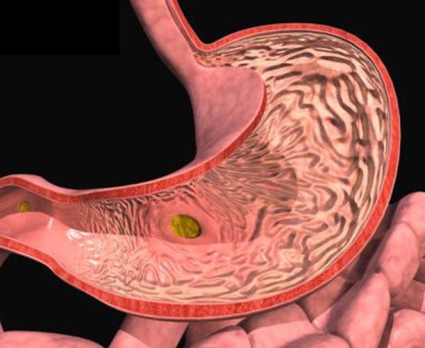 Больной желудок в разрезе
