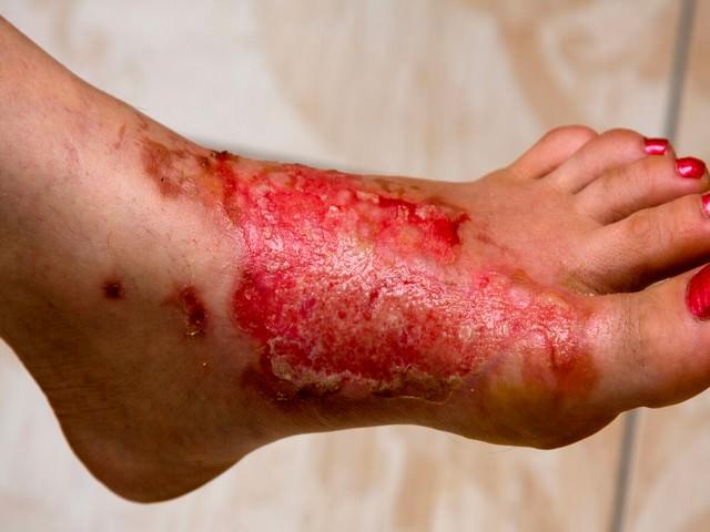 Сильное повреждение кожи на ноге
