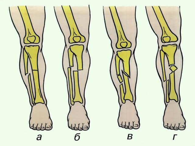 Травмы ноги