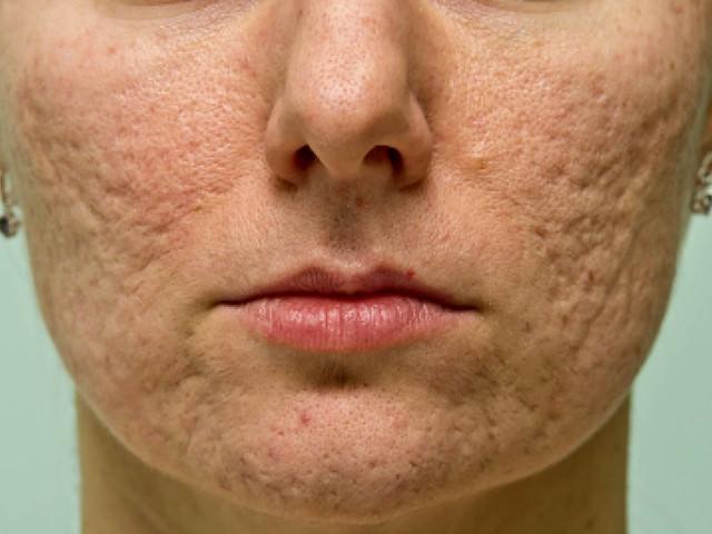 Нехорошая кожа