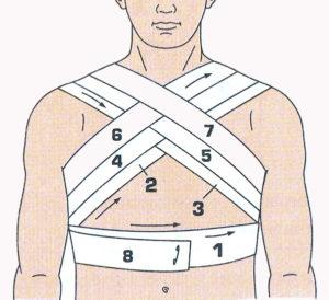 Наложение повязки при переломе ключицы